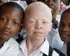 В Танзании знахарей подозревают  в массовом убийстве альбиносов