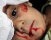 517 погибших в Северной провинции Алеппо